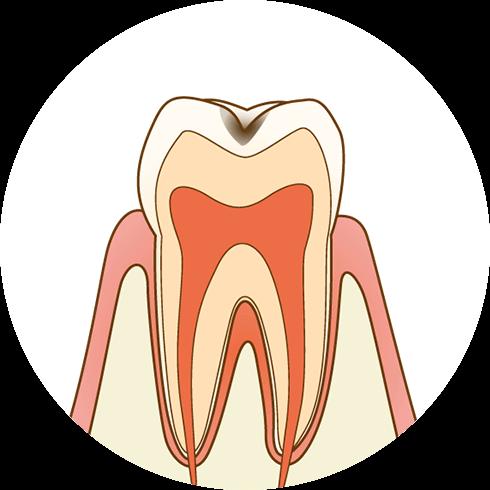 歯の表面に虫歯ができます