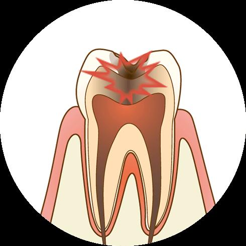 虫歯が神経に近くなり、冷たいものがしみます